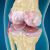 Osteoarthritis : Knee , x-ray