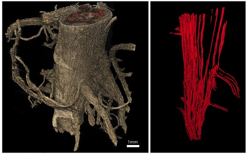 MRI Tree Scans