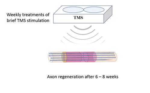 Western Sydney University pioneers non-invasive nerve repair technology