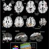 Neural regulation of cardiovascular system